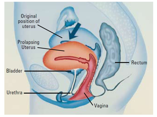 Necessary sexual position and bladder prolapse